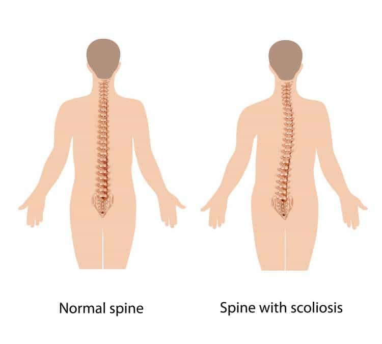 The difference between the normal spine and a spine with scoliosis.